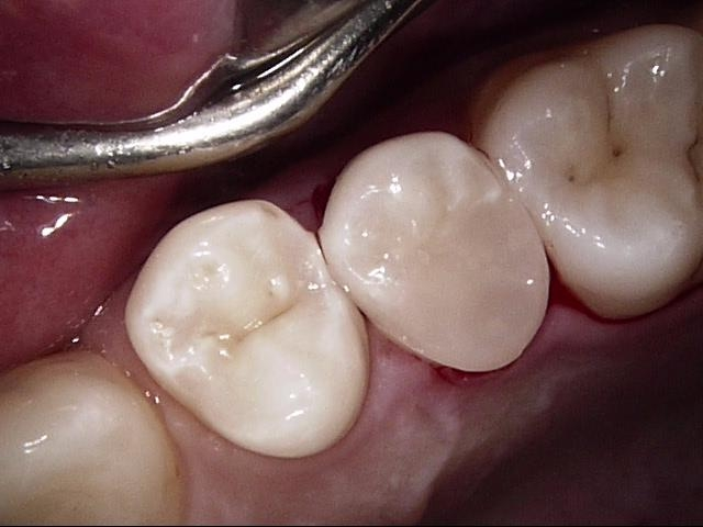 Cleaning Fillings_2