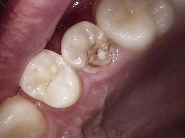 Cleaning Fillings_1