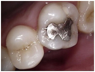 Do we always remove Amalgam?